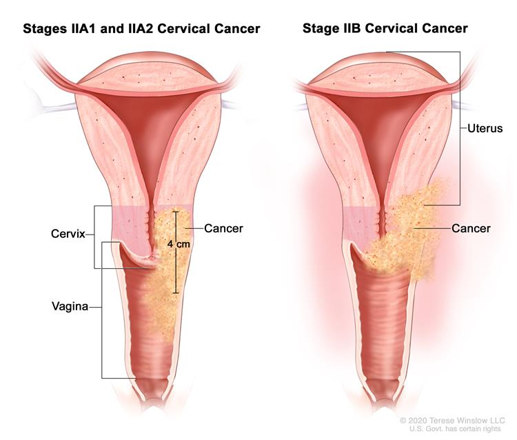 cervical cancer without having hpv