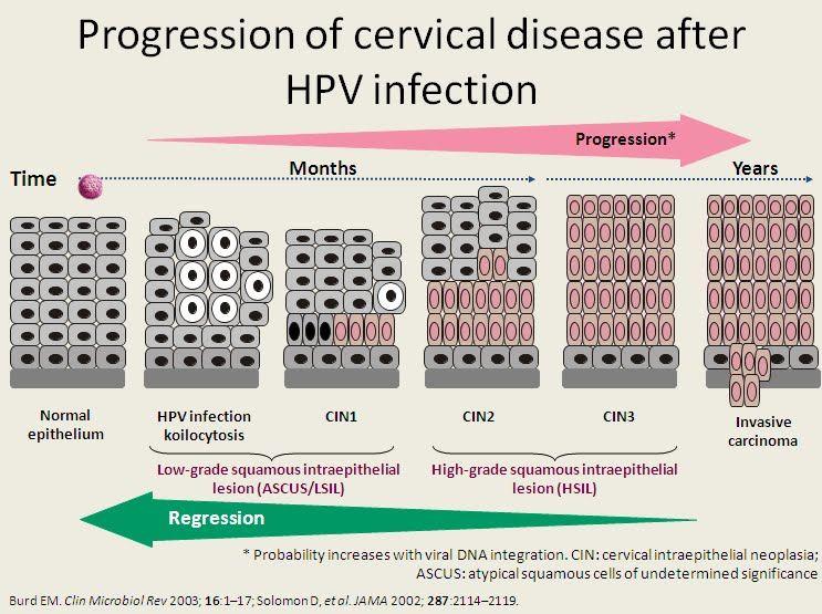 hpv high-risk c (02) positive colorectal cancer vegetarian