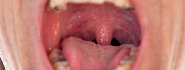 virus del papiloma humano boca sintomas