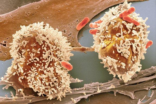 virus del papiloma tratamiento hpv en mujeres tratamiento con acido