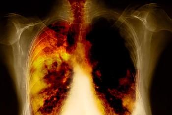 cancer pulmonar tumoare maligna