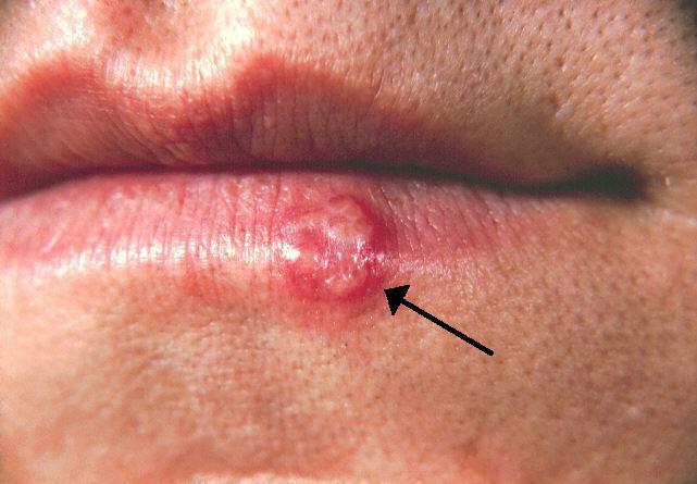 hpv sau herpes definition de papillome