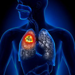 can hpv virus cause rectal cancer breast cancer and human papillomavirus