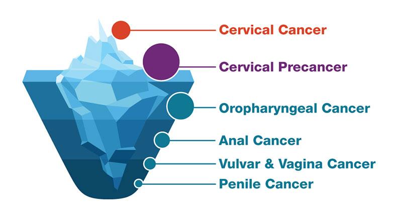 papilloma virus pelle cancer familial syndromes