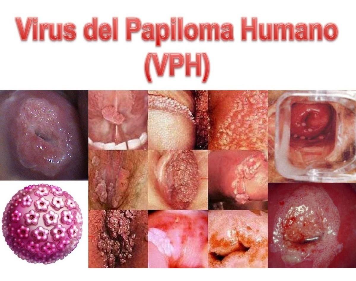 Varicele și sifilis Virus papiloma humano sintomas y tratamiento, Que es el papiloma sifilis