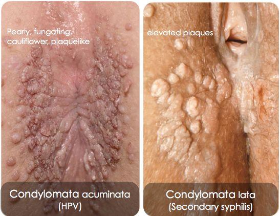 virus del papiloma humano como se detecta operation lesion papillomavirus