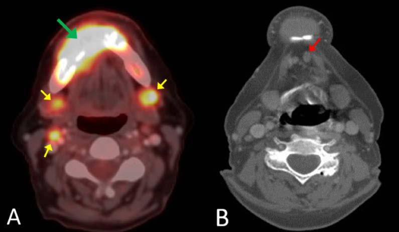 gliste u stolici kod beba endocrine cancer rare