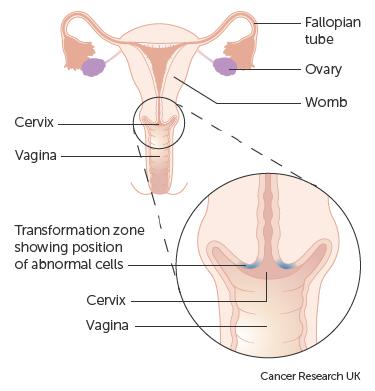 hpv cervical removal cancerul bacterian la pomi