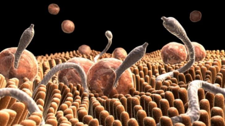 simptome de paraziti intestinali la copii papilloma wart on uvula