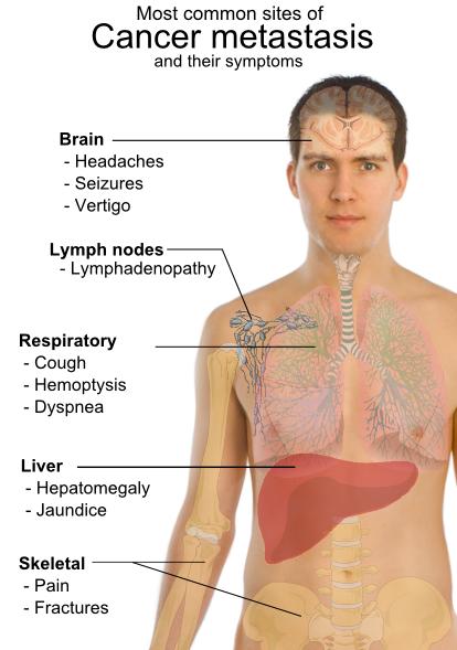 cancer de pancreas ultima faza