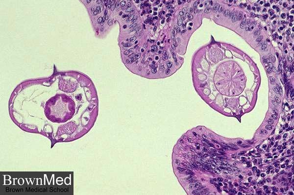hpv et cancer gorge
