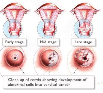 hpv virus in woman cancer na boca por hpv