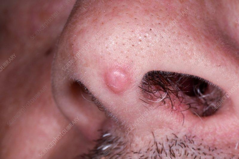 squamous papilloma and warts