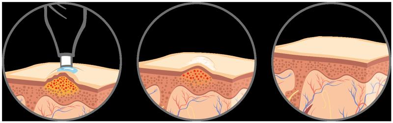 verrue papillomavirus contagieux pancreatic cancer vs pancreatitis