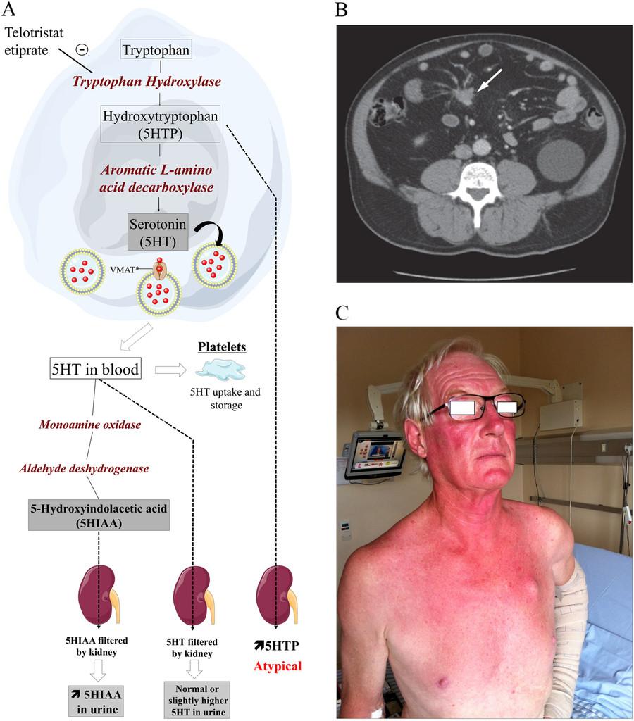 neuroendocrine cancer kidney