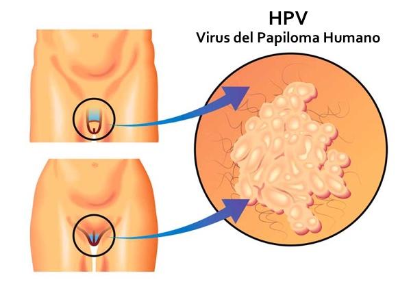 papiloma condilomas o verrugas genitales papilloma and carcinoma