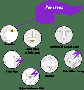 pancreatic cancer causes