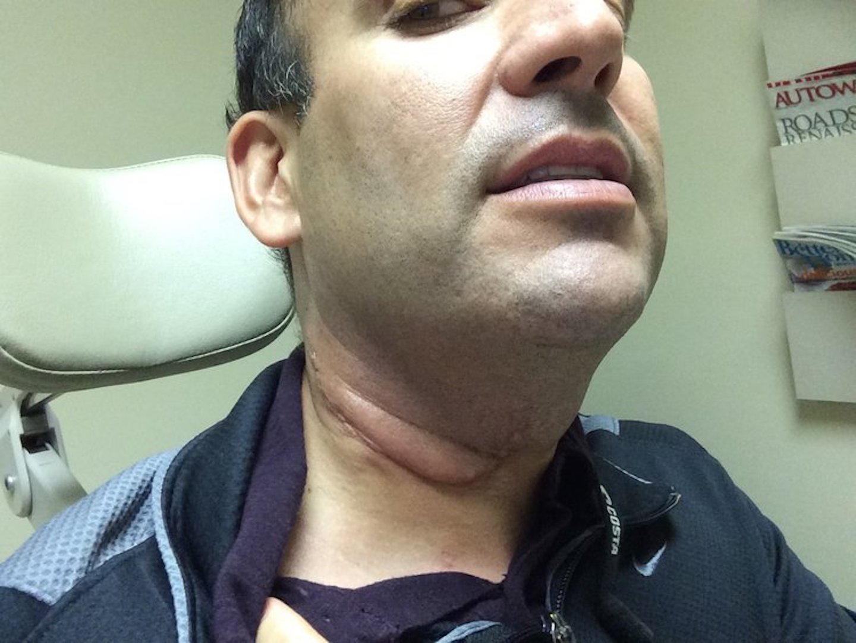 neck papilloma removal