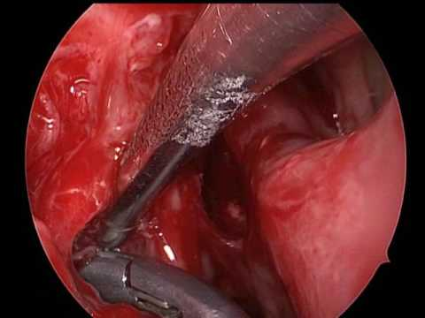 cancerul nazal vestibular papillomatosis adalah