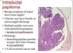 laryngeal papillomatosis histopathology hpv virus priznaky u zen