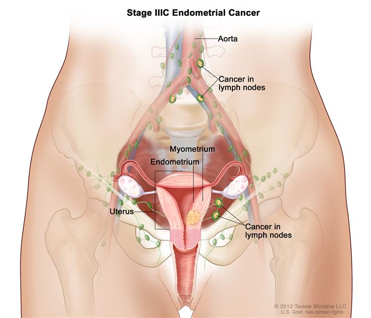 endometrial cancer back pain hpv males vaccination