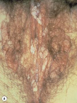 papilloma ad alto rischio cancer bucal en ninos