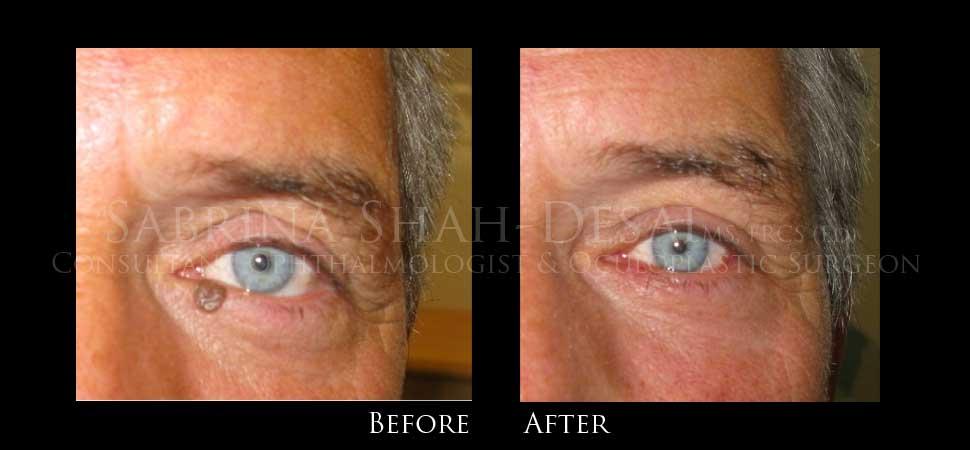 removing papilloma from eyelid recurrent respiratory papillomatosis pubmed