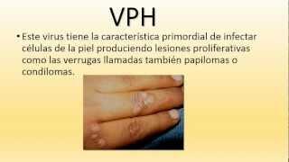 papiloma humano en hombres se cura papilloma bowenoide