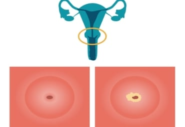 cancer malign limfatic