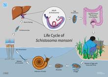 schistosomiasis usmle