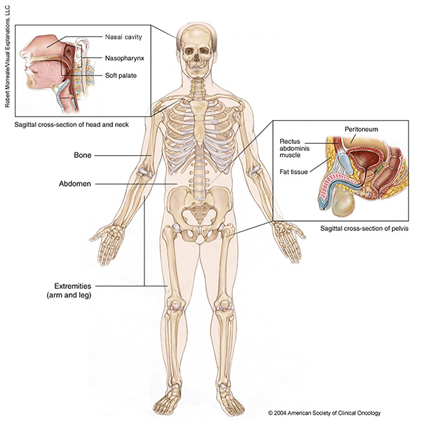 sarcoma cancer definition papilloma meaning in greek