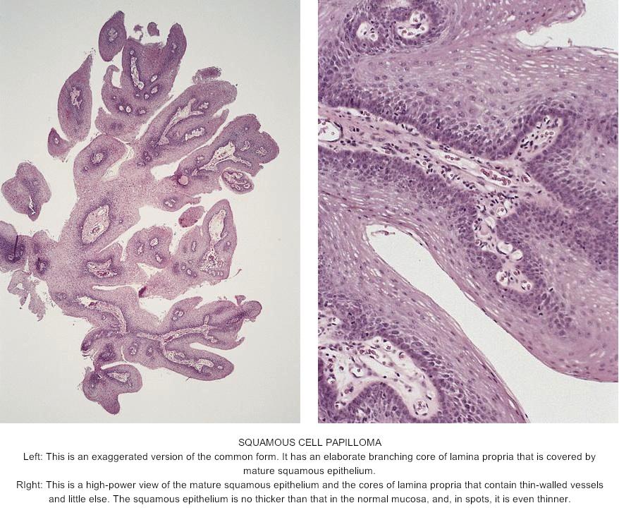 esophageal papilloma histology