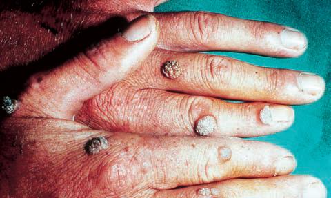 neuroendocrine cancer survival papiloma humano mujeres