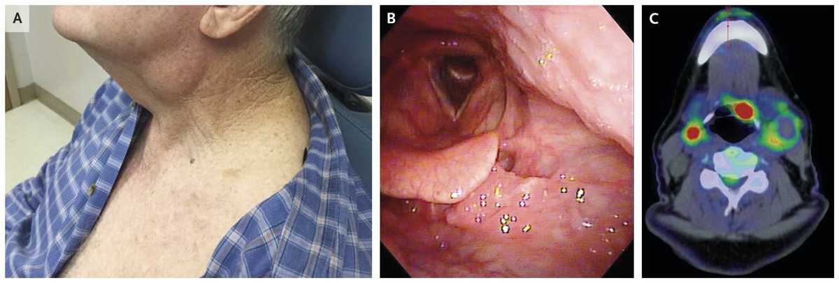 papilloma in mouth treatment