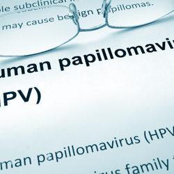 vestibular papillomatosis how long does it last