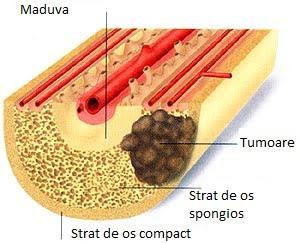 cancer osos se trateaza cancer gat cauze