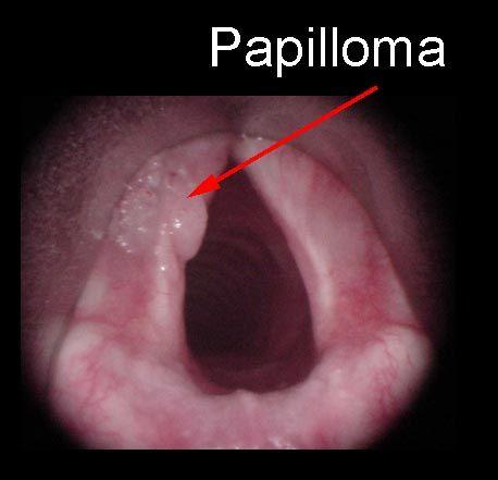 papillomas laryngeal