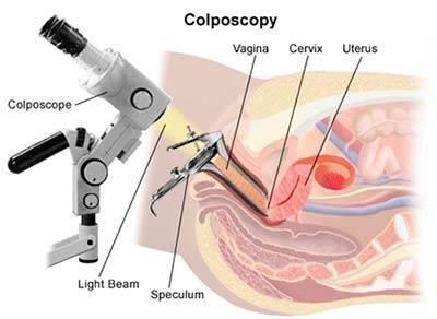 papiloma virus colposcopie virus papiloma humano tipo 51
