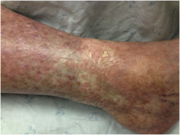 papilloma virus cani detoxifierea cu argila
