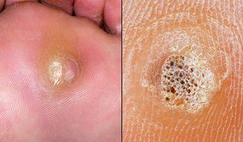 foot verruca black schistosomiasis anemia