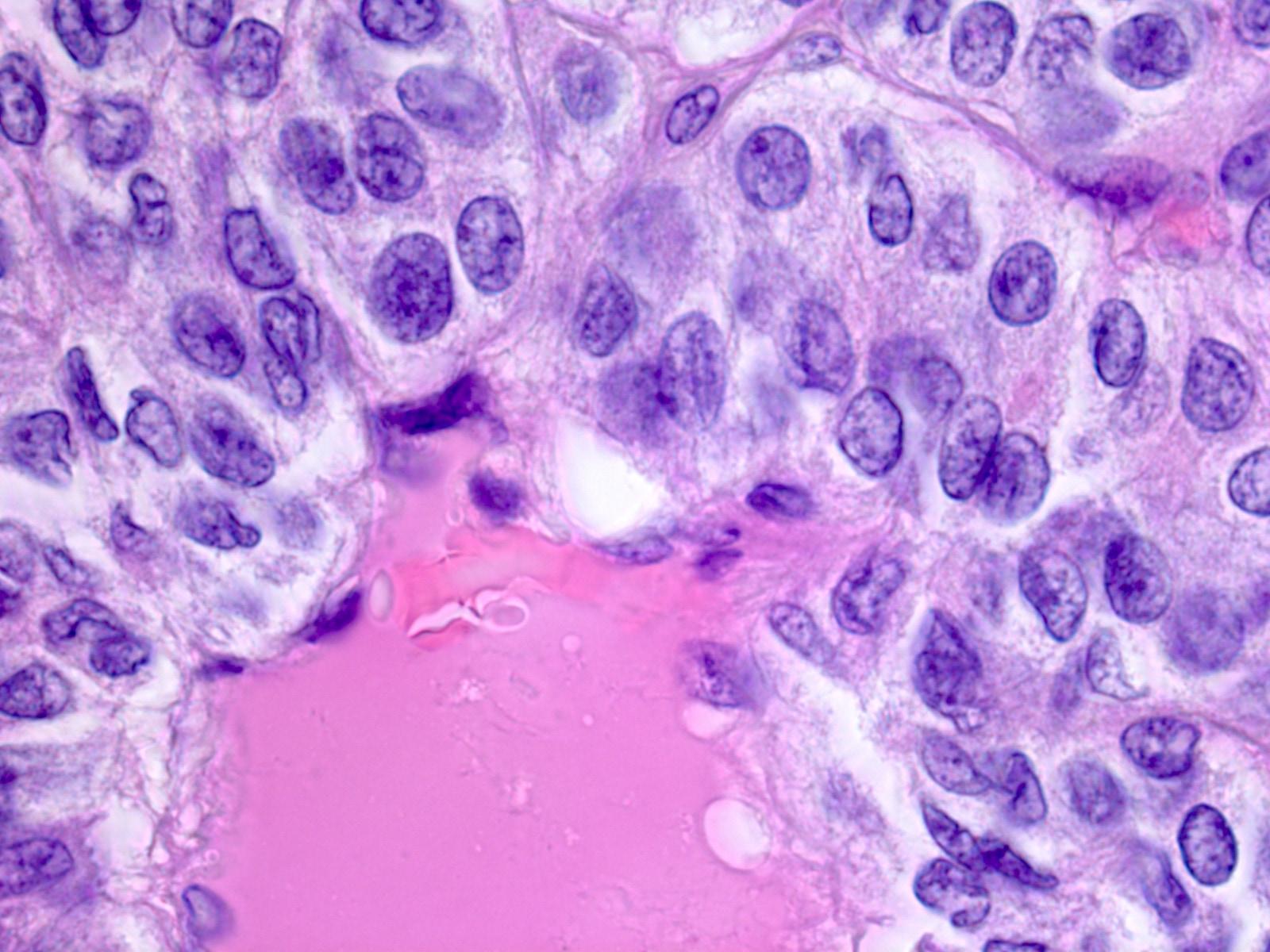 papillary thyroid cancer emedicine hpv virus in throat cancer