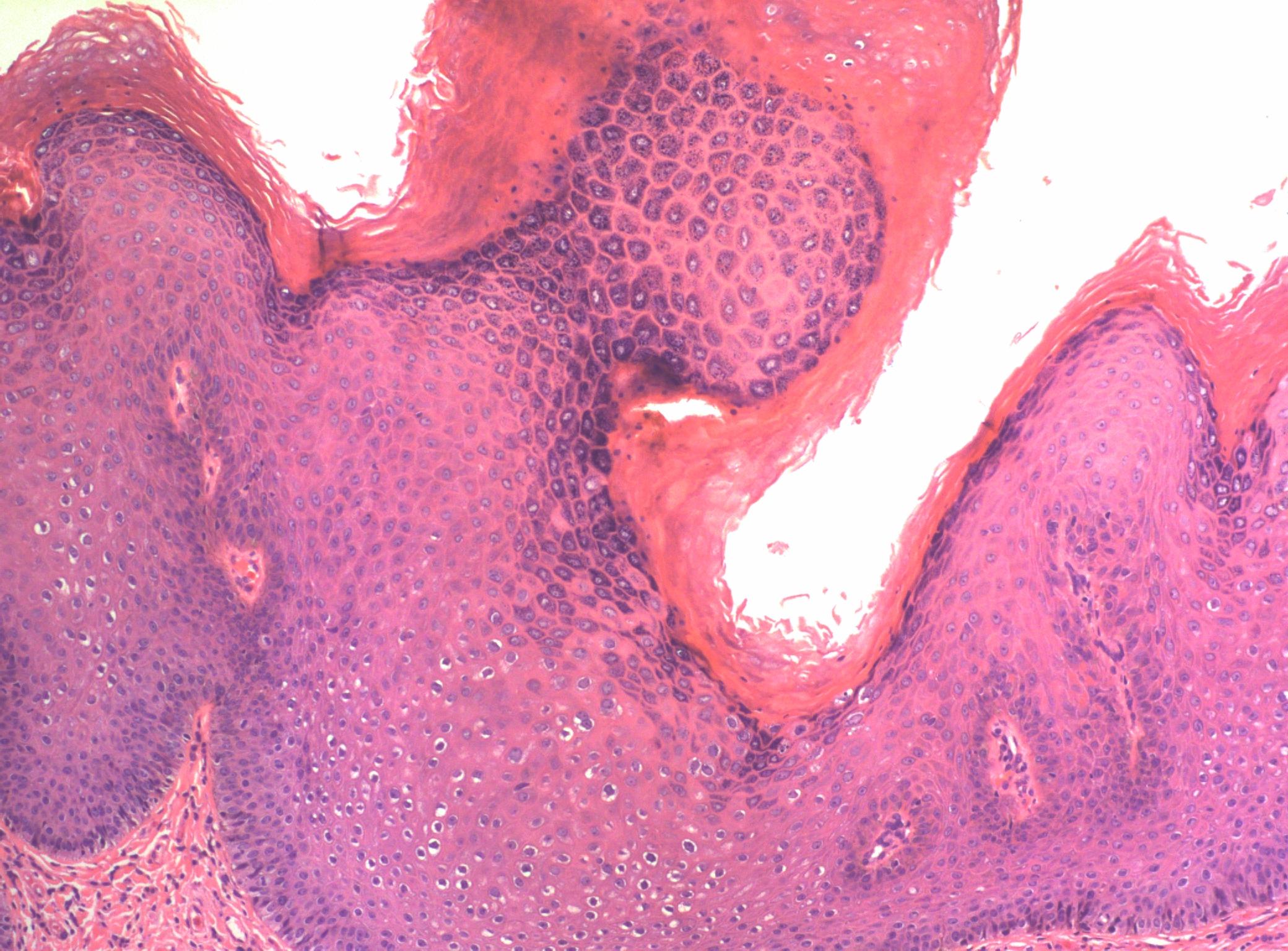papilloma virus cane contagio inverted papilloma histopathology