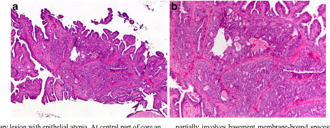 biliary papillomatosis intraductal papillary mucinous neoplasm