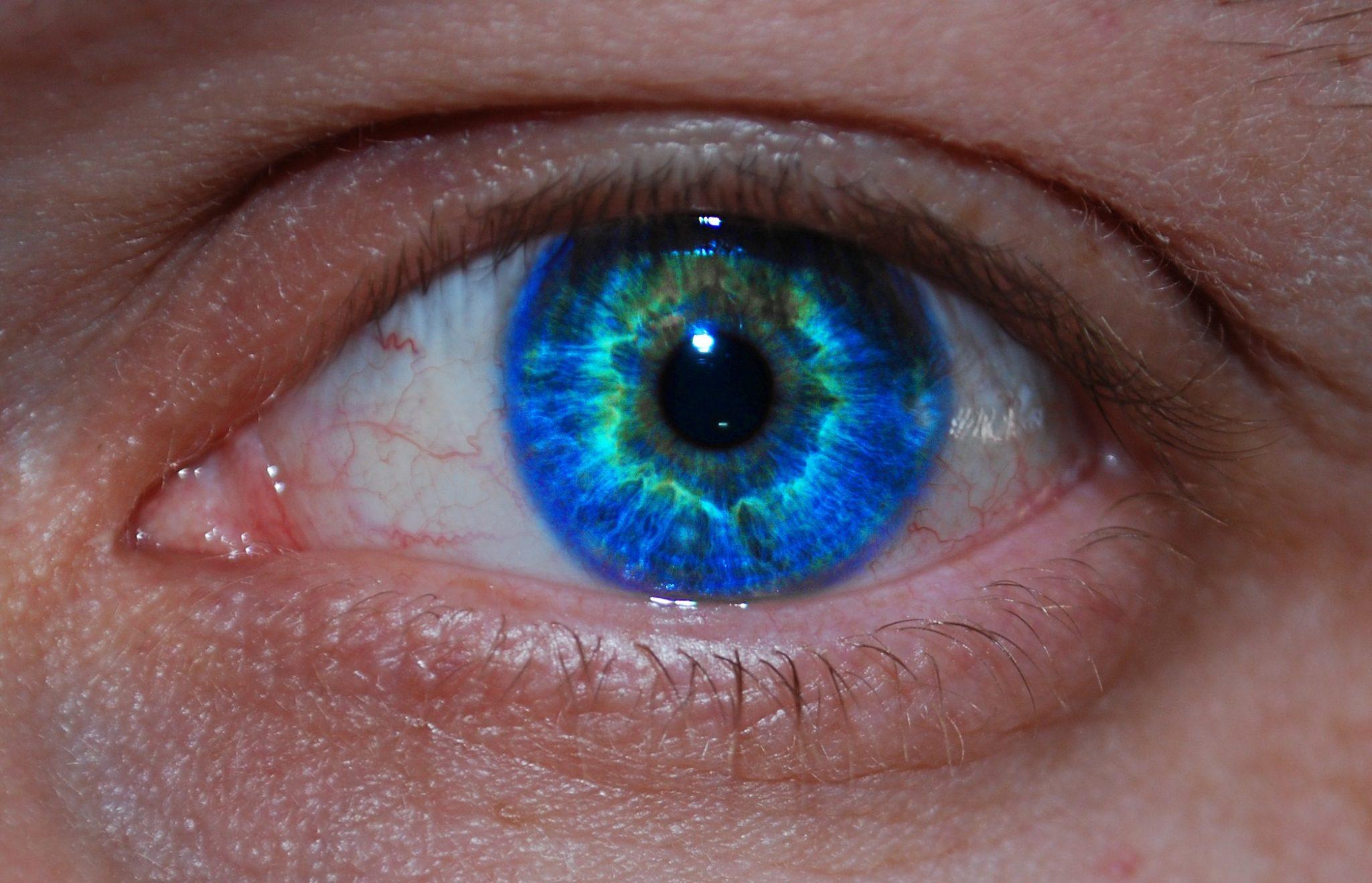 wart on bottom eyelid bowel cancer hepatic flexure