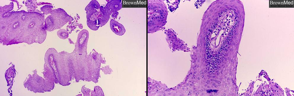 hpv virus i trudnoca cancerul si durerile de spate