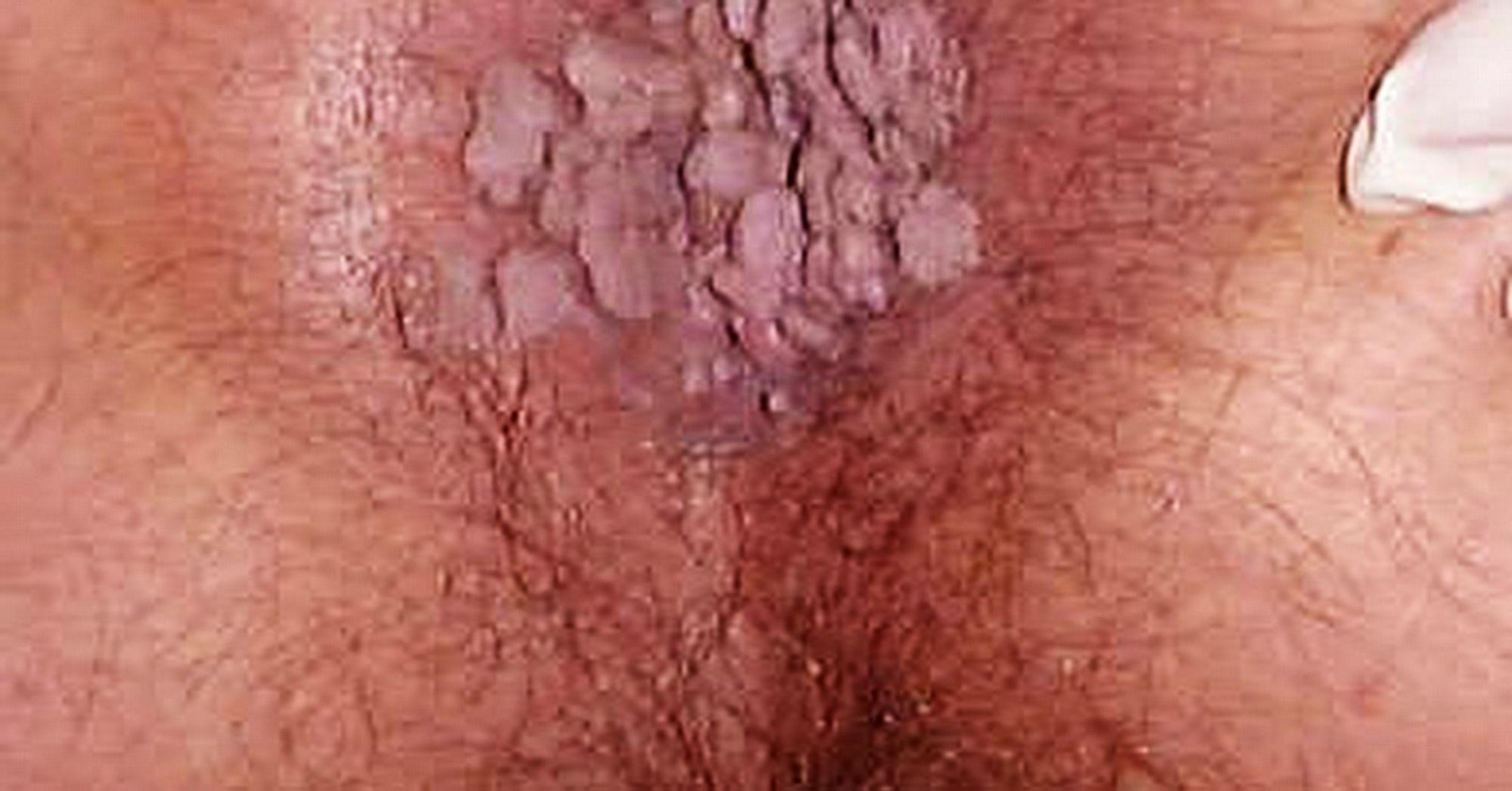papilloma lingua terapia cancer bila simptome