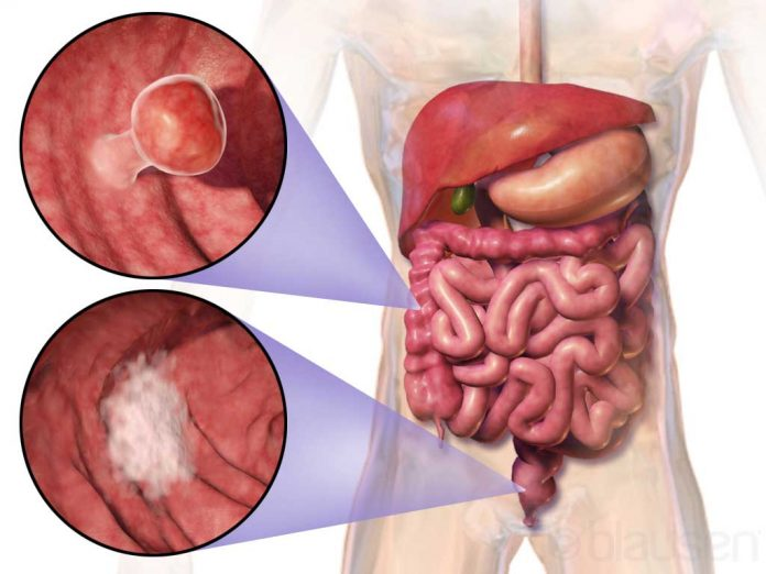 cancer la colon vindecare