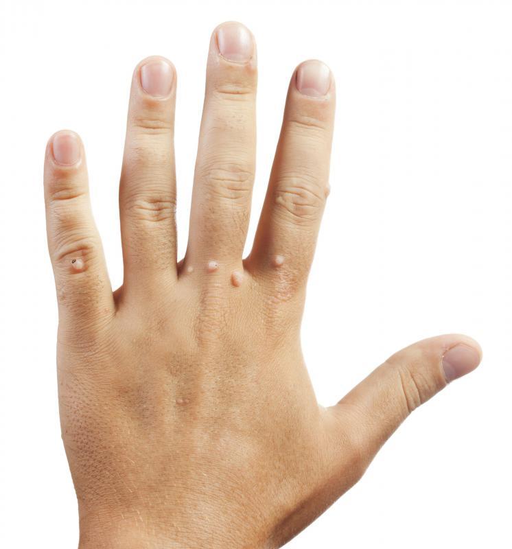 warts on hands homeopathy tracheal tumors papilloma