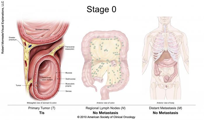 rectosigmoid cancer stage 4 papillom entfernen laser