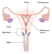 hpv cervical removal hpv cancer contagious